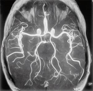 MRA -untersuchung-hirn-arterien