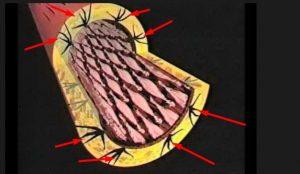 mikroskopische-artrienverletzungen